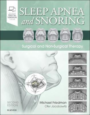 Image for Sleep Apnea and Snoring - Surgical and Non-Surgical Therapy from emkaSi