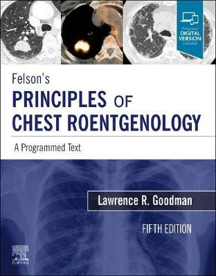 Image for Felson's Principles of Chest Roentgenology, A Programmed Text - A Programmed Text from emkaSi